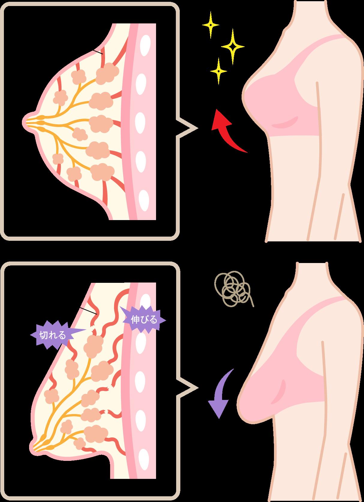 産後のおすすめナイトブラランキング